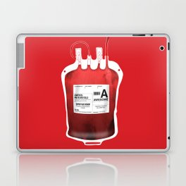 My Blood Type is A, for Awesome! *Classic* Laptop & iPad Skin