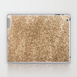 Gold Glitter Laptop & iPad Skin