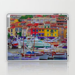 Loads of Color Laptop & iPad Skin