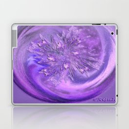 Restrained excitement  Laptop & iPad Skin