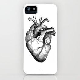 Anatomically Incorrect iPhone Case