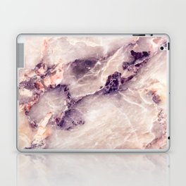Pink marble texture effect Laptop & iPad Skin