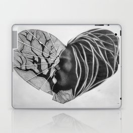 VISION Laptop & iPad Skin