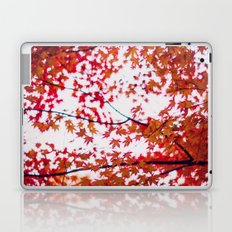 up in the trees you'll find peace Laptop & iPad Skin
