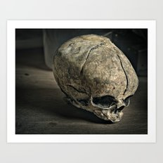 Fetal Skull Art Print