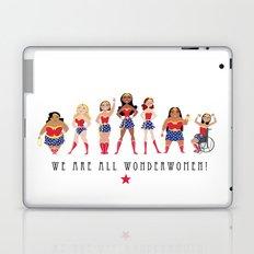 We Are All Wonderwomen! Laptop & iPad Skin