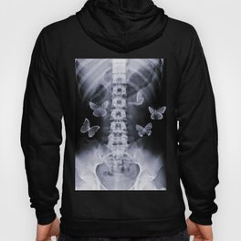 X-Ray Conceptual Butterflies  Hoody