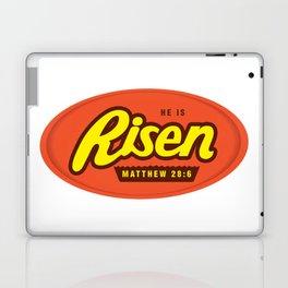 He Is Risen - Matthew 28:6 Laptop & iPad Skin