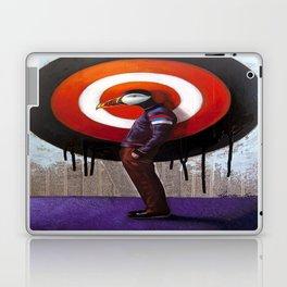 One% on Target Laptop & iPad Skin