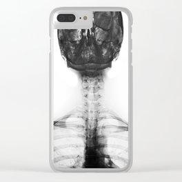Bones of an Artist Clear iPhone Case