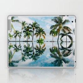 tropical vibes #decor #buyart #society6 Laptop & iPad Skin