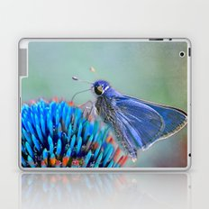 Why Not? Laptop & iPad Skin