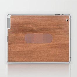 Keep It Together Laptop & iPad Skin