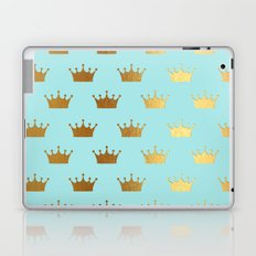 Gold Glitter effect crowns on aqua - Heraldy Pattern for Princesses on #Society6 Laptop & iPad Skin