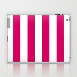 Bright Pink Peacock and White Wide Vertical Cabana Tent Stripe Laptop & iPad Skin