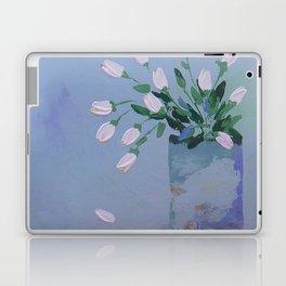 Falling Pedal Laptop & iPad Skin