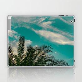 Palms on Turquoise - II Laptop & iPad Skin
