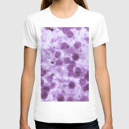 Influenza virus  in semi-transparent blue T-shirt
