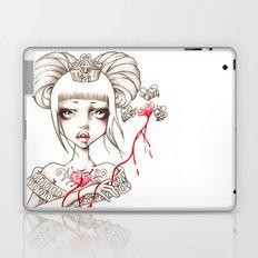 Honey Blood Laptop & iPad Skin