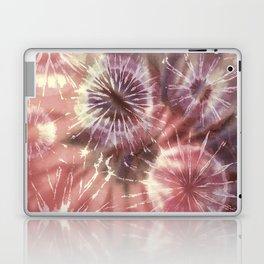 Tie Dye 7 Laptop & iPad Skin
