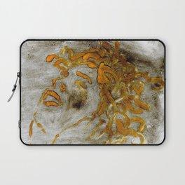 Medusa-The Trauma Laptop Sleeve