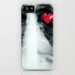RX_heart iPhone Case