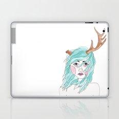 Antler Laptop & iPad Skin