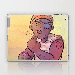 Stowaway Pirate Laptop & iPad Skin