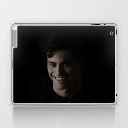Alec Lightwood Dark Design Laptop & iPad Skin