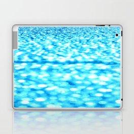 Turquoise Bokeh Sparkles Laptop & iPad Skin