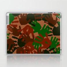 Evidence v1: Camo Laptop & iPad Skin