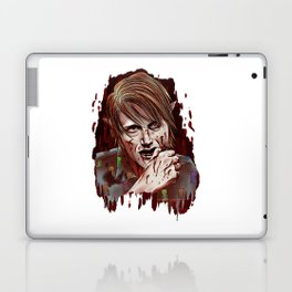 Werewolf!Nigel Laptop & iPad Skin