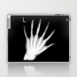 Extra Digit X-Ray Laptop & iPad Skin