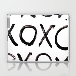 xo  Laptop & iPad Skin