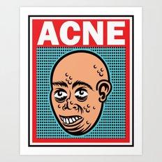 ACNE Art Print