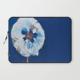 Life in Blue  Laptop Sleeve