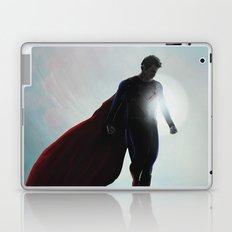 Super Laptop & iPad Skin