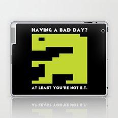 Worst Video Game Ever Laptop & iPad Skin