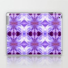 Millenium Park Lights Laptop & iPad Skin