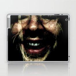 Scar Laptop & iPad Skin