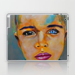 Heterochromia boy by ilya konyukhov (c) Laptop & iPad Skin