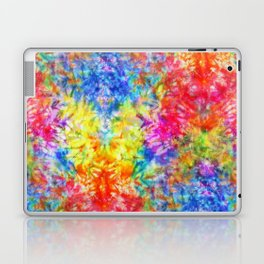 Rainbow Sunshine Tie Dye Laptop & iPad Skin