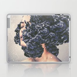 Hybrid Laptop & iPad Skin