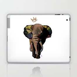 Stand Up and Stand Out Laptop & iPad Skin