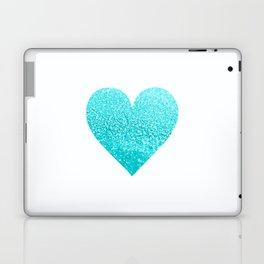 AQUA HEART Laptop & iPad Skin
