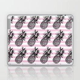 Pink Striped Pineapple Pattern Laptop & iPad Skin
