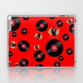 Angus on Vinyl Laptop & iPad Skin