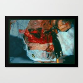 Dogbite Canvas Print