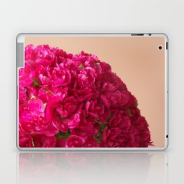 Girls 15th Birthday Laptop & iPad Skin