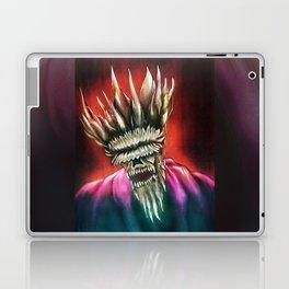 Zombie King Laptop & iPad Skin